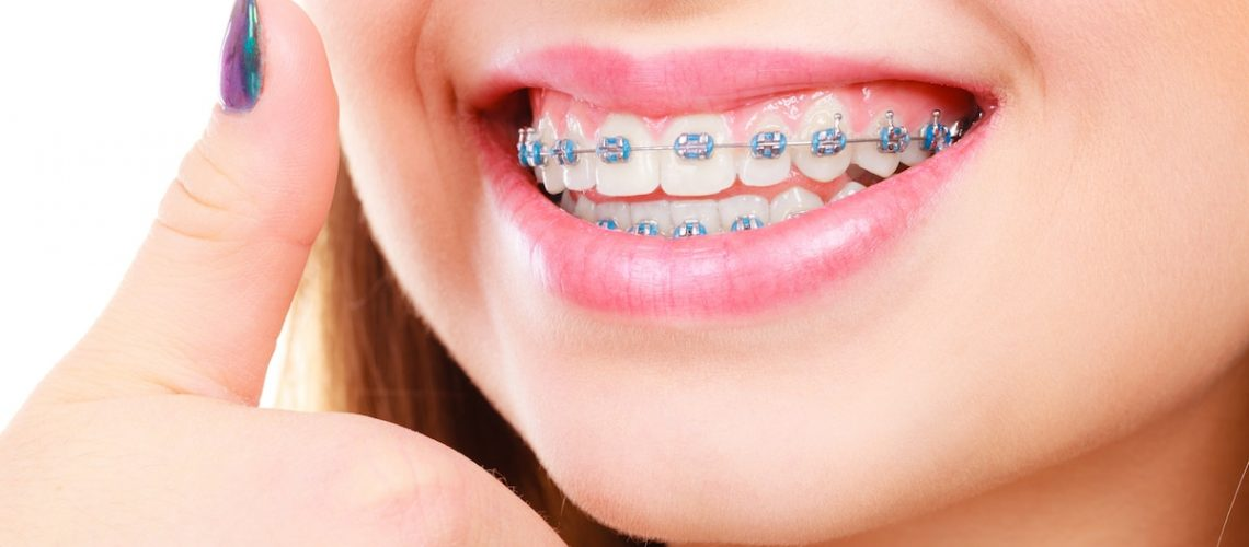 Orthodontics - Who Can Benefit from Orthodontic Treatment